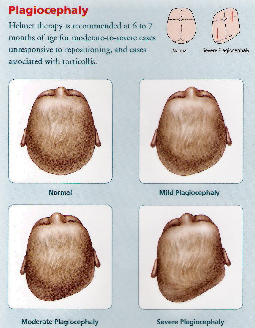 Flat Head Baby Or Positional Plagiocephaly In Babies Dr